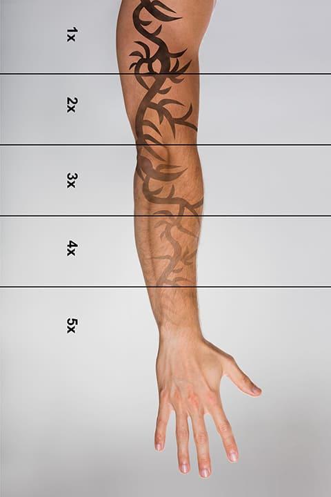 rimozione_tatuaggio